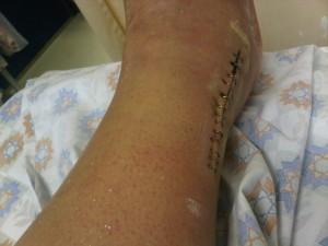טיפול בצלקת מניתוח בקרסול - לפני