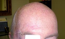 טיפול בצלקת מפציעה במצח - אחרי