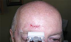 טיפול בצלקת מפציעה במצח - לפני