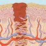 העור מורכב משלוש שכבות עיקריות